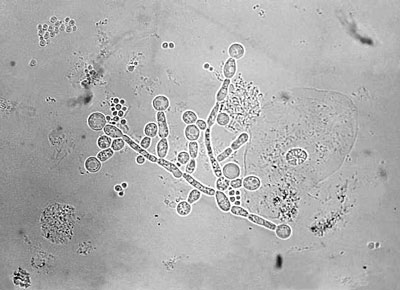 candida albicans 02